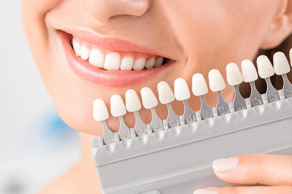 Carillas dentales vs blanqueamiento dental