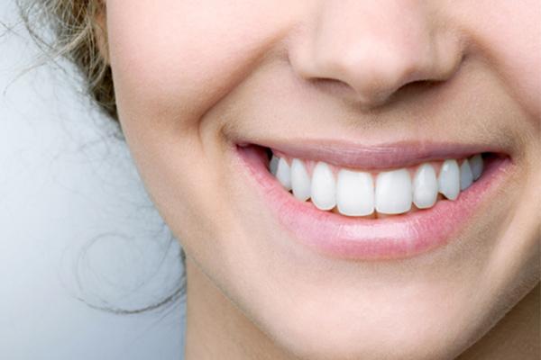 Qué son las carillas dentales y en qué se diferencian del blanqueamiento dental